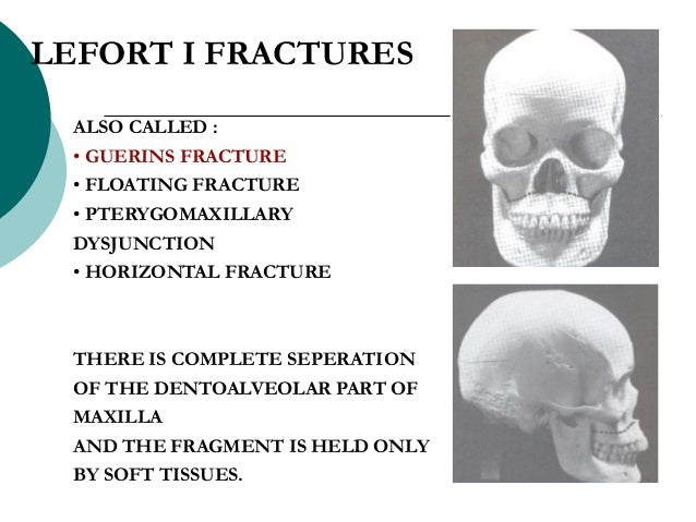 ALSO CALLED : • GUERINS FRACTURE • FLOATING FRACTURE • PTERYGOMAXILLARY DYSJUNCTION • HORIZONTAL FRACTURE THERE IS COMPLET...