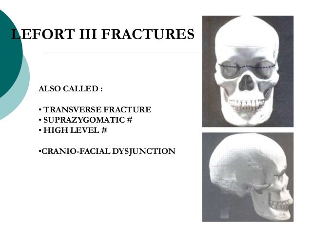 ALSO CALLED : • TRANSVERSE FRACTURE • SUPRAZYGOMATIC # • HIGH LEVEL # •CRANIO-FACIAL DYSJUNCTION LEFORT III FRACTURES