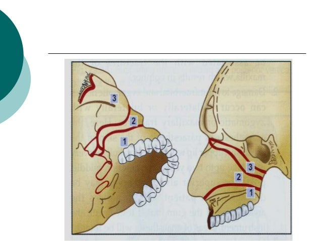 ROWE AND WILLIAMS CLASSIFICATION -1985 A. FRACTURES NOT INVOLVING OCCLUSION : I. Central Region : a.Fractures of the nasal...
