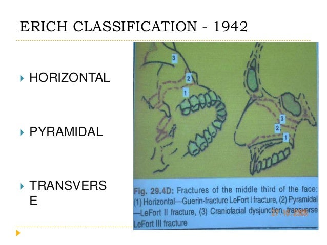 Modified LeFort Fracture Classification - 1993 Le-Fort Level Description  I Low maxillary fracture  la Low maxillary fra...