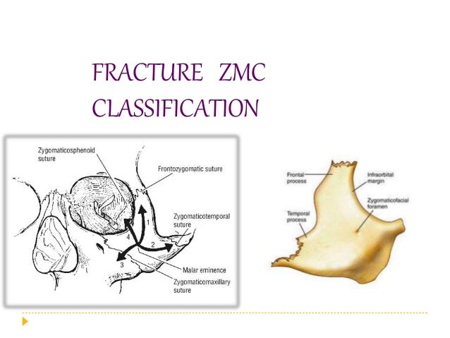 KNIGHT AND NORTH'S CLASSIFICATION : 1961  Group I : Undisplaced fractures.  Group II : Arch fractures.  Group III : Unr...
