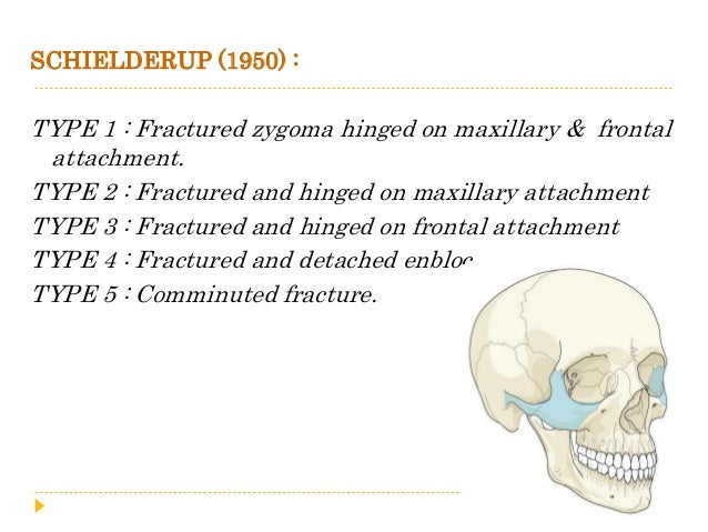  Rowe & Killey (1968) Type I : No significant displacement Type II : Fracture of the zygomatic arch Type III : Rotation a...