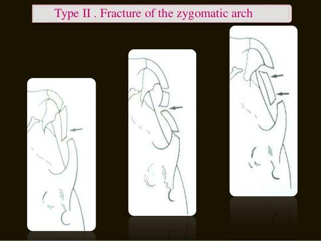 Type IV. Rotation around longitudinal axis