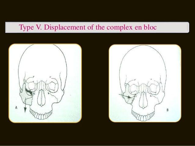 Type VII. Displacement of orbital rim segments