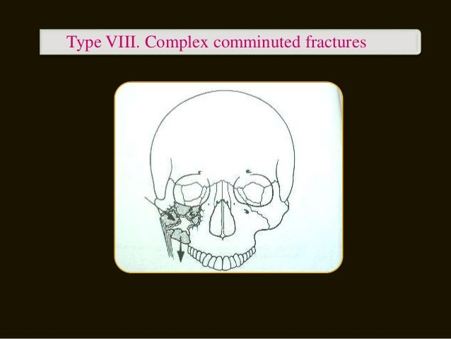  MARKUS ZING (1992)  Type A : Incomplete zygomatic fracture.  Type B : Complete monofragment zygomatic fracture (tetrad...