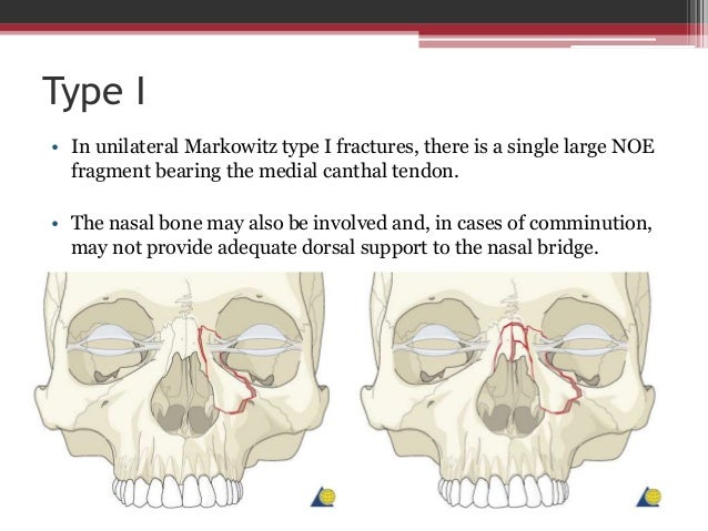 Unilateral Type II + Involvement of the nasal bone • The nasal bone may also be involved and, in cases of comminution, may...