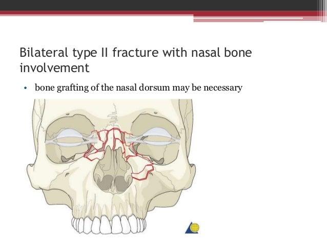 Type III + Involvement of the nasal bone