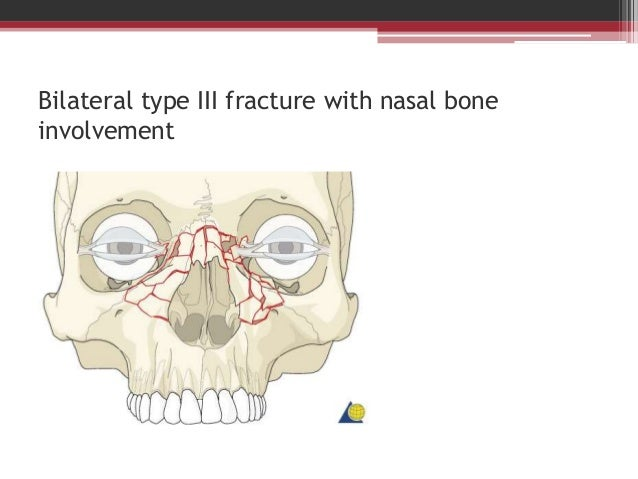 Classification of Mandible, Midface, ZMC and NOE Fractures