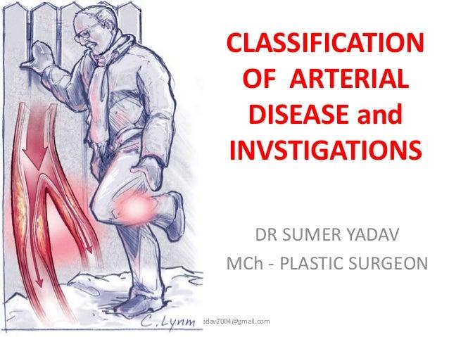 CLASSIFICATION OF ARTERIAL DISEASE and INVSTIGATIONS DR SUMER YADAV MCh - PLASTIC SURGEON sumeryadav2004@gmail.com