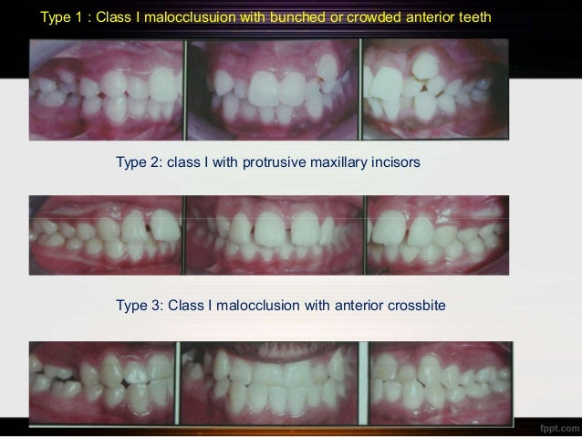 angle classification of malocclusion pdf