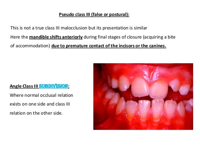 incisor relationship definition of