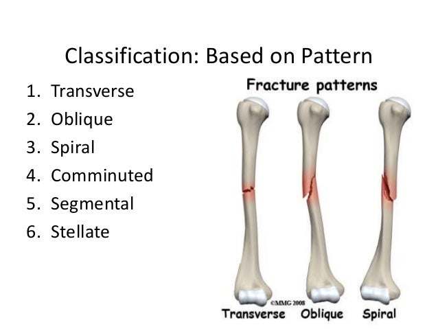 Classification of Fractures & Compound Fracture Managment