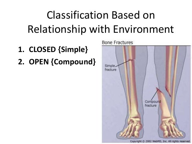 classification of fractures & compound fracture managment, Human Body
