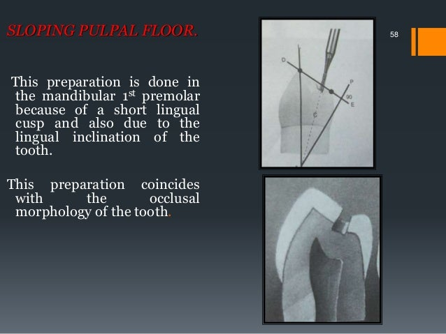 Pulpal Floor Gingival Wall Pulpal Floor Gingival Wall