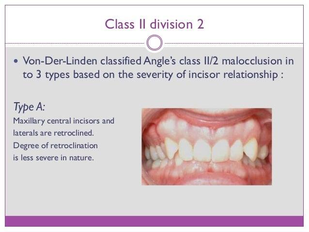 Class II division 2 malocclusion