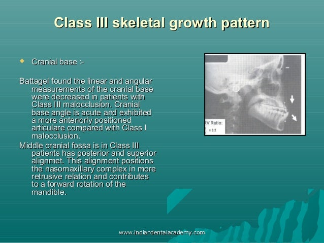 Does the Panoramic Radiography Have the Power to Identify the Gonial Angle in Orthodontics?