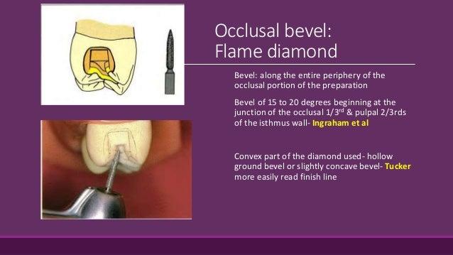 Pulpal Floor Gingival Wall 5 Fundamental Of Cavity