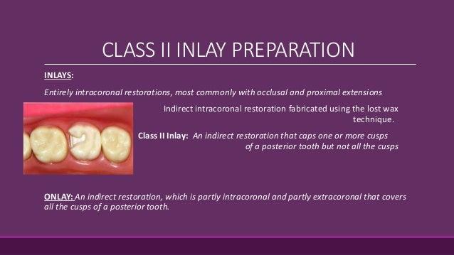 Class II Inlay Slide 3