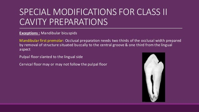 Gingival Floor Class 2 Principles Of Cavity Preparation By