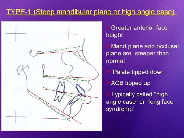 gonial angle as an indicator for growth pattern The gonial angle is an important parameter for determining the growth pattern of an individual, assessing the rotation of the mandible 1 and the extraction pattern in class ii patients, 2 making decisions regarding whether to perform surgery in class iii skeletal base patients, 3 and estimating age in forensic medicine 4 it is also an .