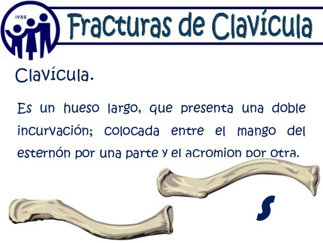 Fracturas Clavicula Lg