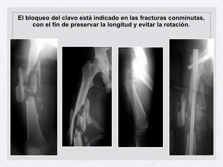 El bloqueo del clavo está indicado en las fracturas conminutas,     con el fin de preservar la longitud y evitar la rotaci...