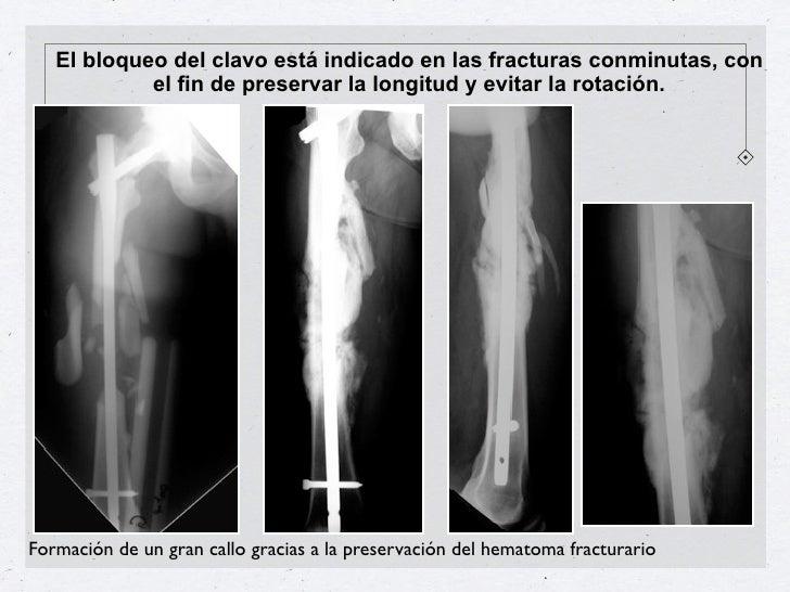 El bloqueo del clavo está indicado en las fracturas conminutas, con            el fin de preservar la longitud y evitar la...