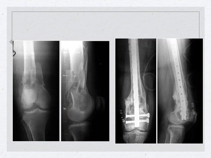 Callo vicioso y artrosis en varo: doble osteotomía