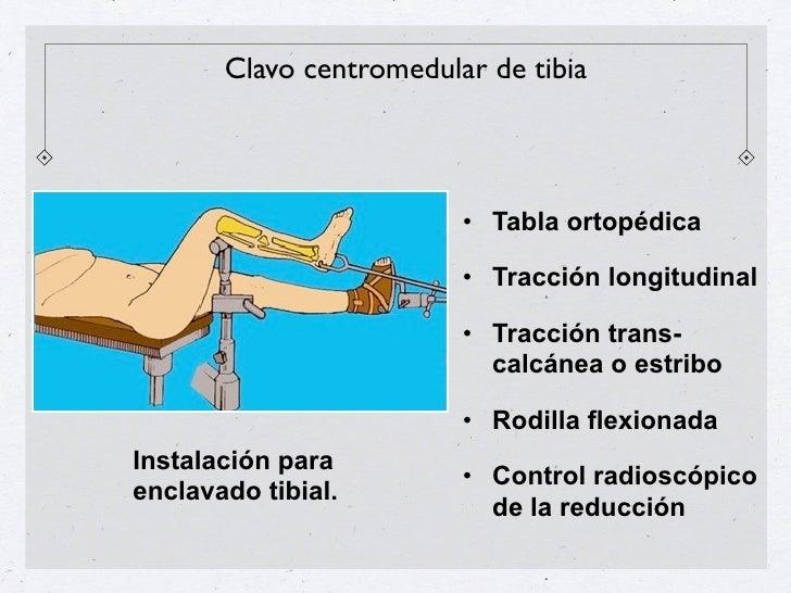 El enclavado endomedular en fracturas cerradas de diáfisispermite la reducción de todos los desplazamientos, ¿excepto     ...