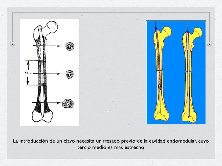 La introducción de un clavo necesita un fresado previo de la cavidad endomedular, cuyo                            tercio m...