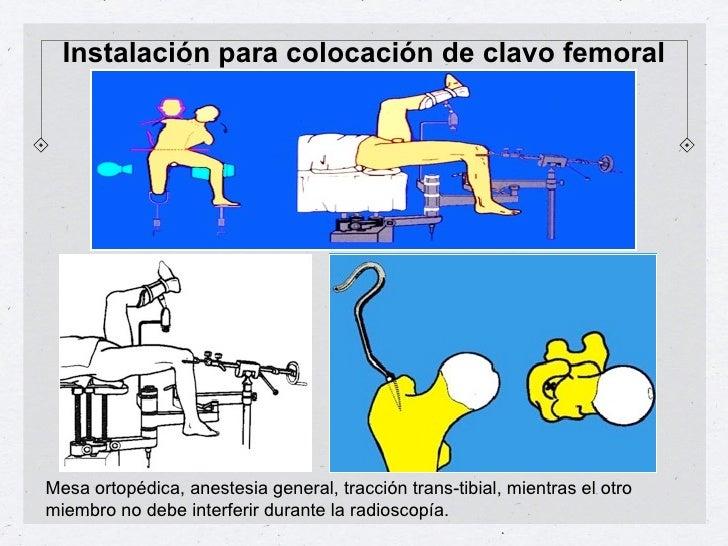 Instalación para colocación de clavo femoralMesa ortopédica, anestesia general, tracción trans-tibial, mientras el otromie...