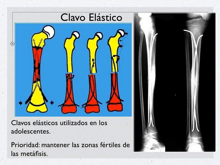 Clavo centromedular