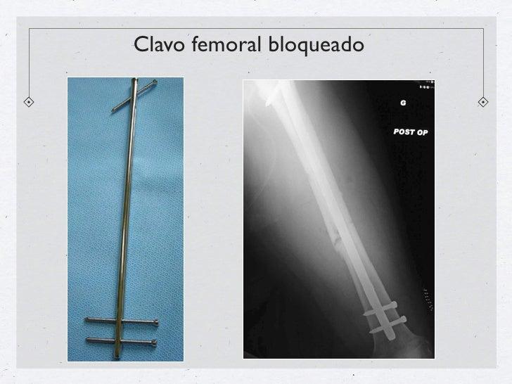 Clavo femoral bloqueado