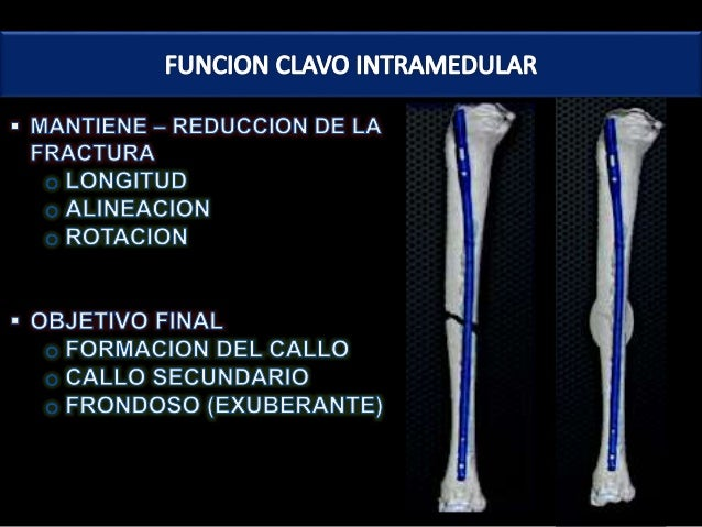 Amputacion supracondilea femoral pdf to excel
