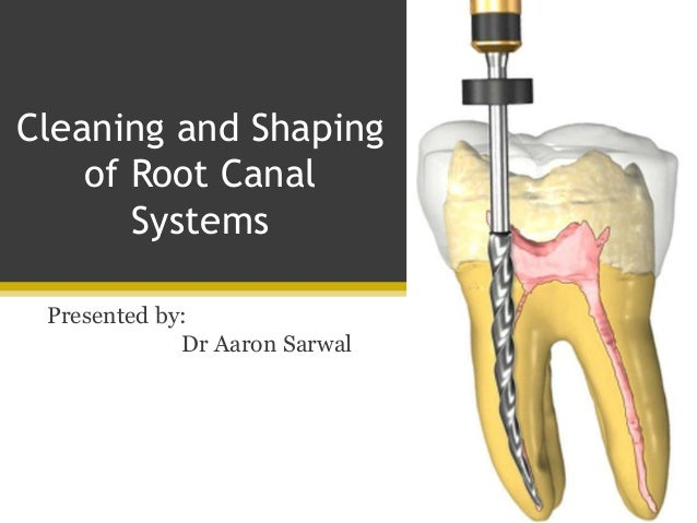Cleaning and Shaping of Root Canal Systems
