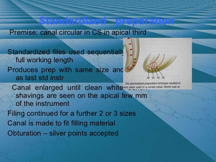 coronal to apical preparation technique step down tech 44