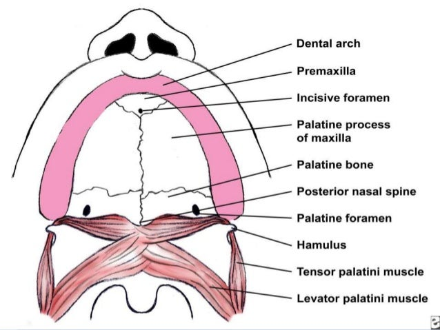 Cleft lip and Cleft palate embryology, features, and management