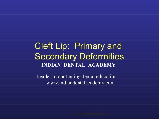 Cleft Lip: Primary and Secondary Deformities INDIAN DENTAL ACADEMY Leader in continuing dental education www.indiandentala...