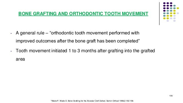 """BONE GRAFTING AND ORTHODONTIC TOOTH MOVEMENT • A general rule – """"orthodontic tooth movement performed with improved outcom..."""