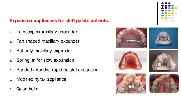 Expansion appliances for cleft palate patients: 1. Telescopic maxillary expander 2. Fan shaped maxillary expander 3. Butte...