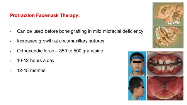 Protraction Facemask Therapy: • Can be used before bone grafting in mild midfacial deficiency • Increased growth at circum...