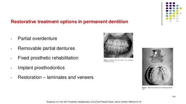 Restorative treatment options in permanent dentition • Partial overdenture • Removable partial dentures • Fixed prosthetic...