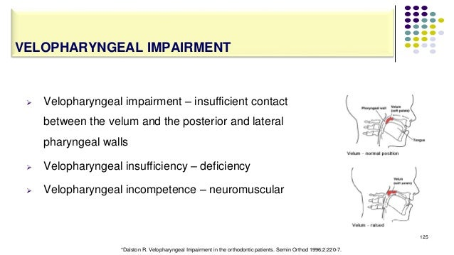  Velopharyngeal impairment – insufficient contact between the velum and the posterior and lateral pharyngeal walls  Velo...