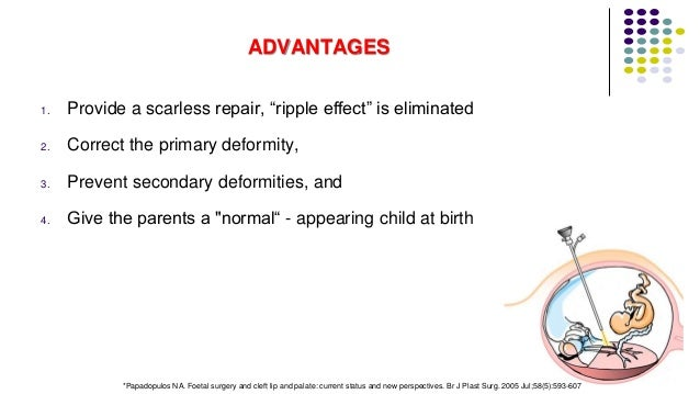 """ADVANTAGES 1. Provide a scarless repair, """"ripple effect"""" is eliminated 2. Correct the primary deformity, 3. Prevent second..."""