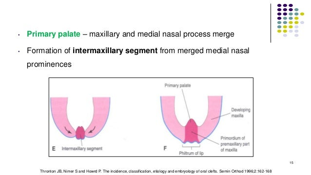 • Primary palate – maxillary and medial nasal process merge • Formation of intermaxillary segment from merged medial nasal...
