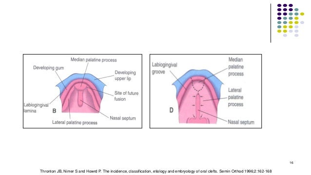 16 Thronton JB, Nimer S and Howrd P. The incidence, classification, etiology and embryology of oral clefts. Semin Orthod 1...