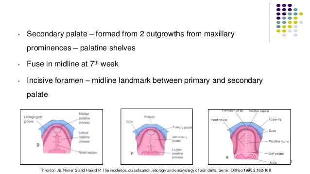 • Secondary palate – formed from 2 outgrowths from maxillary prominences – palatine shelves • Fuse in midline at 7th week ...