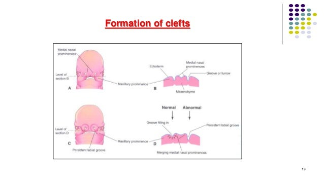 Formation of clefts 19
