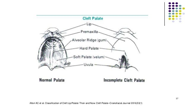 37 Allori AC et al. Classification of Cleft Lip/Palate: Then and Now. Cleft Palate–Craniofacial Journal 2016;53(1)