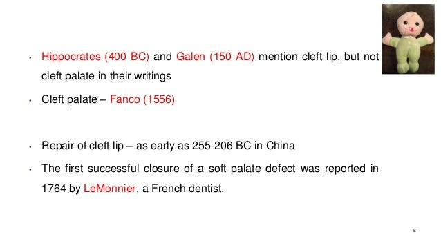 • Hippocrates (400 BC) and Galen (150 AD) mention cleft lip, but not cleft palate in their writings • Cleft palate – Fanco...